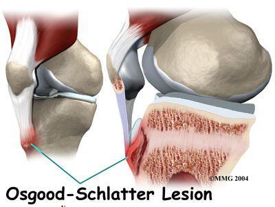Lesion Osgood-Schlatter